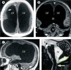 Tomografia pacientului