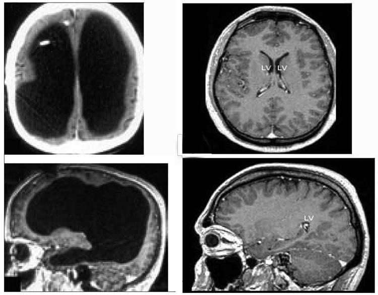 În partea din stânga se poate observa imaginea creierului plin de lichid. În partea dreapta este imaginea unui creier normal