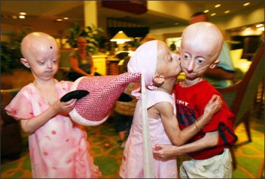 progeria 3